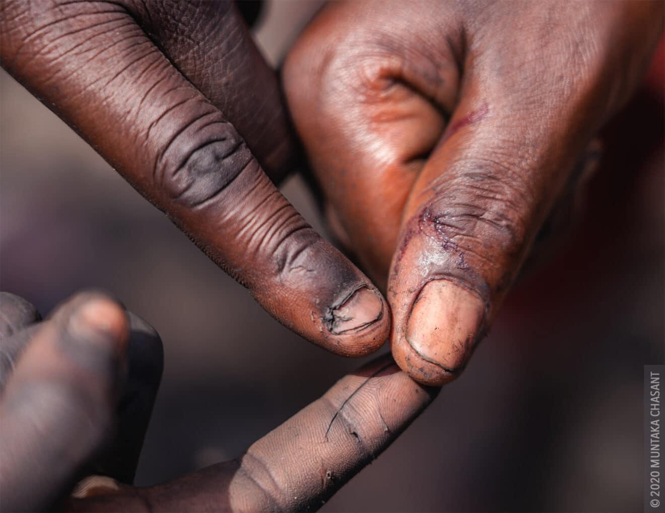 Children of Agbogbloshie: injury