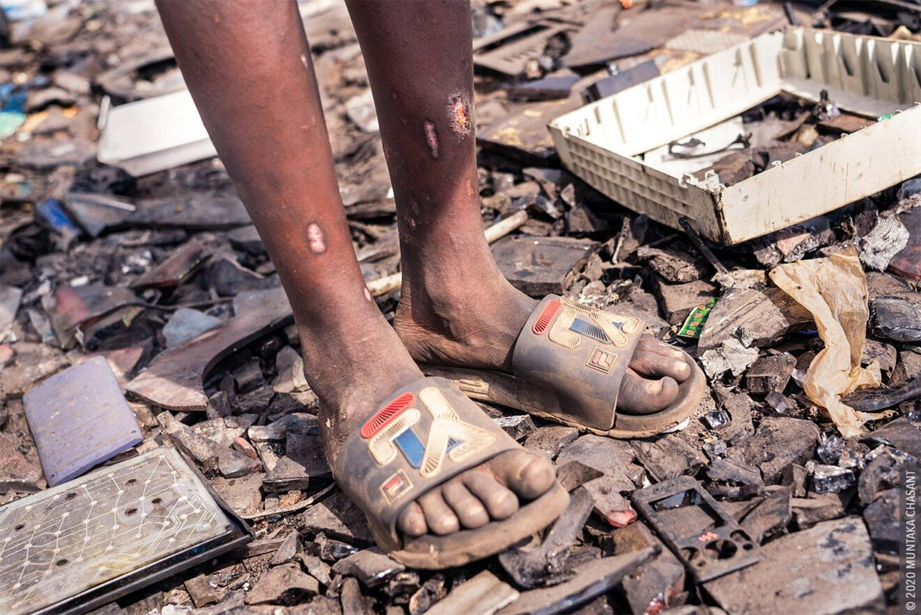 Hazardous child labour: A 13 years old boy engaged in hazardous child labour at Agbogbloshie, Ghana, is cut by a broken CRT glass. © 2020 Muntaka Chasant