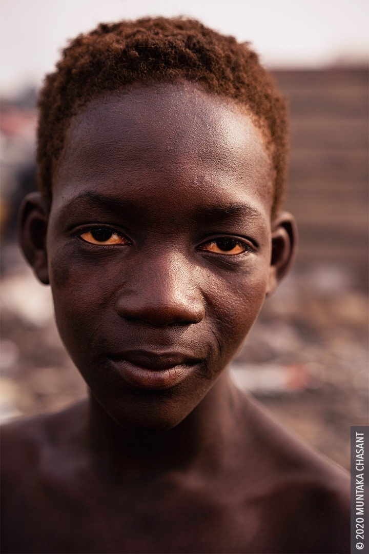 Child Poverty Photos: 15 years old Kwabena (nicknamed Sugar Daddy) is a child labourer at Agbogbloshie, Ghana. © 2020 Muntaka Chasant