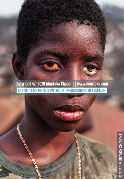 Child labour in Africa: Urban poor boy with a prosthetic (artificial) eye, Ghana. © 2020 Muntaka Chasant