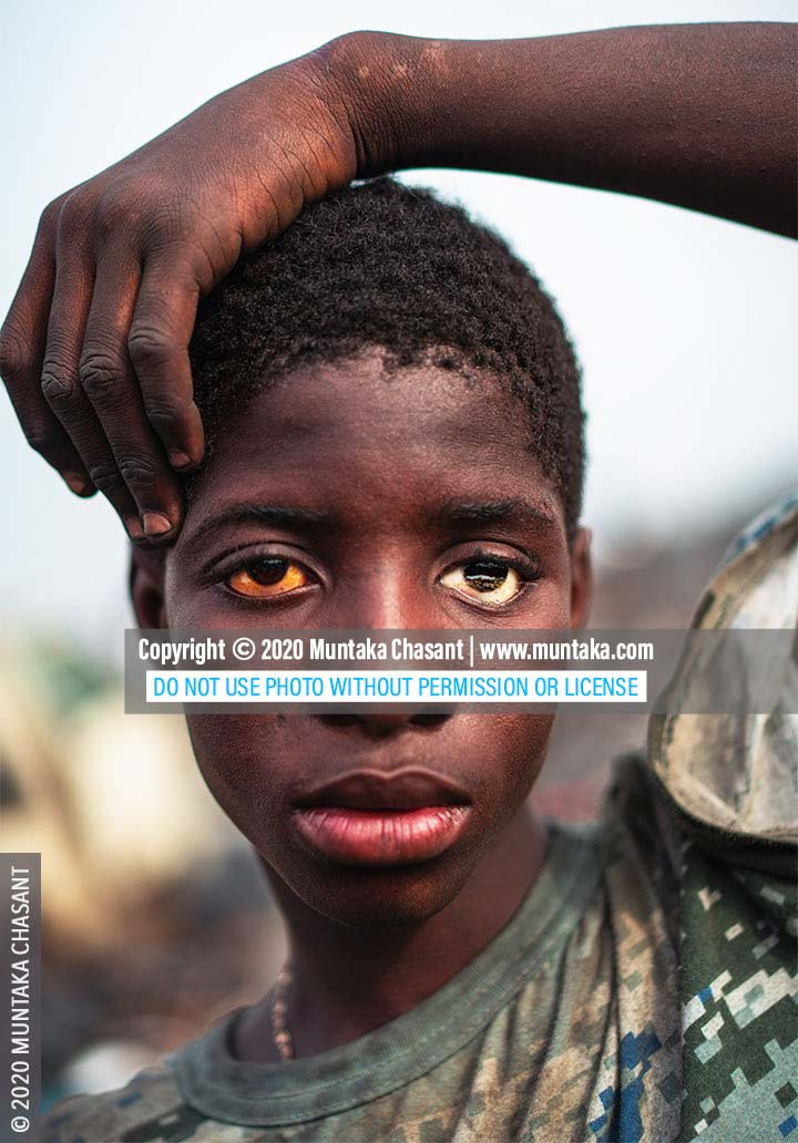 Hazardous child labour: Poor boy with a prosthetic (artificial) eye at Agbogbloshie, Ghana. © 2020 Muntaka Chasant